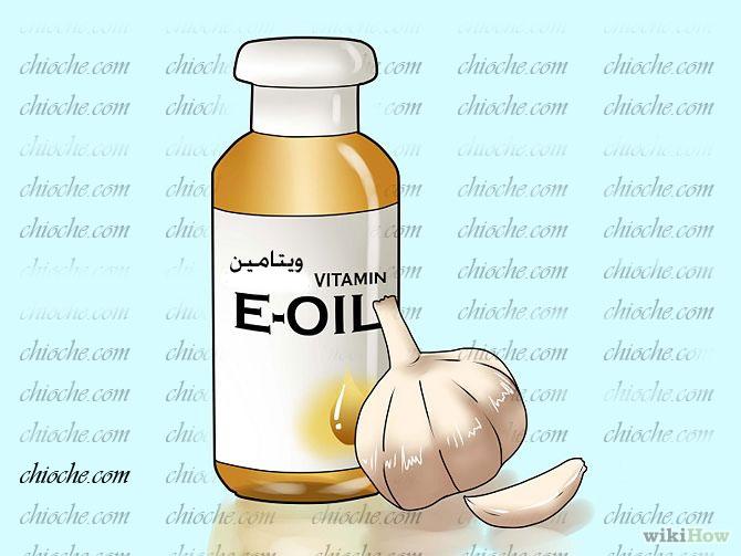 استفاده از سیر و ویتامین E  برای رفع زگیل