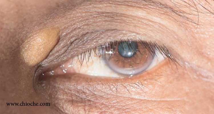 روشهای از بین بردن زانتلاسما، برآمدگی روی پلک و یا چربی پلک