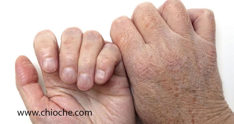 ۱۳ روش خانگی برای درمان دست های ترک خورده